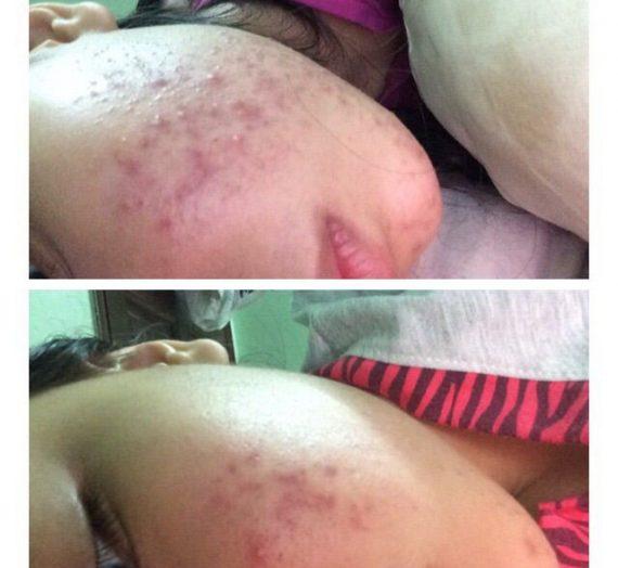 Treatment (Benzoyl Peroxide – 2.5%)